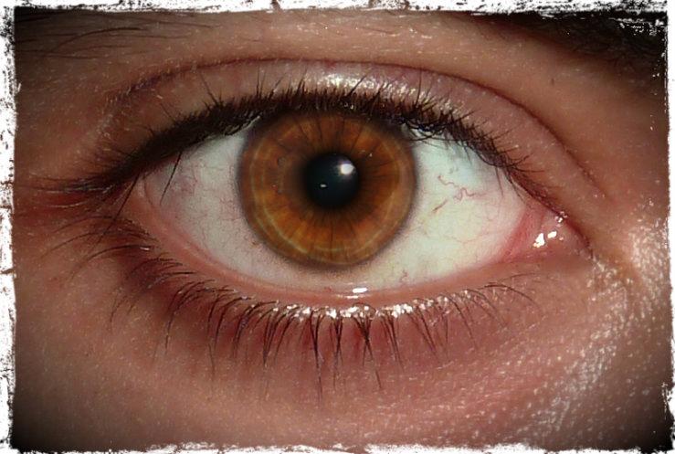 Name:  Eye Pic 3.jpg Views: 168 Size:  185.2 KB