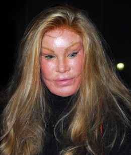 Name:  That+is+only+level+3+of+Botox+gone+wrong.+This+_81361492069ae1eea173668b9ea5ffef.jpg