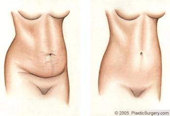 Name:  Tummy-Tuck_procedure-line-art.jpg Views: 669 Size:  17.6 KB