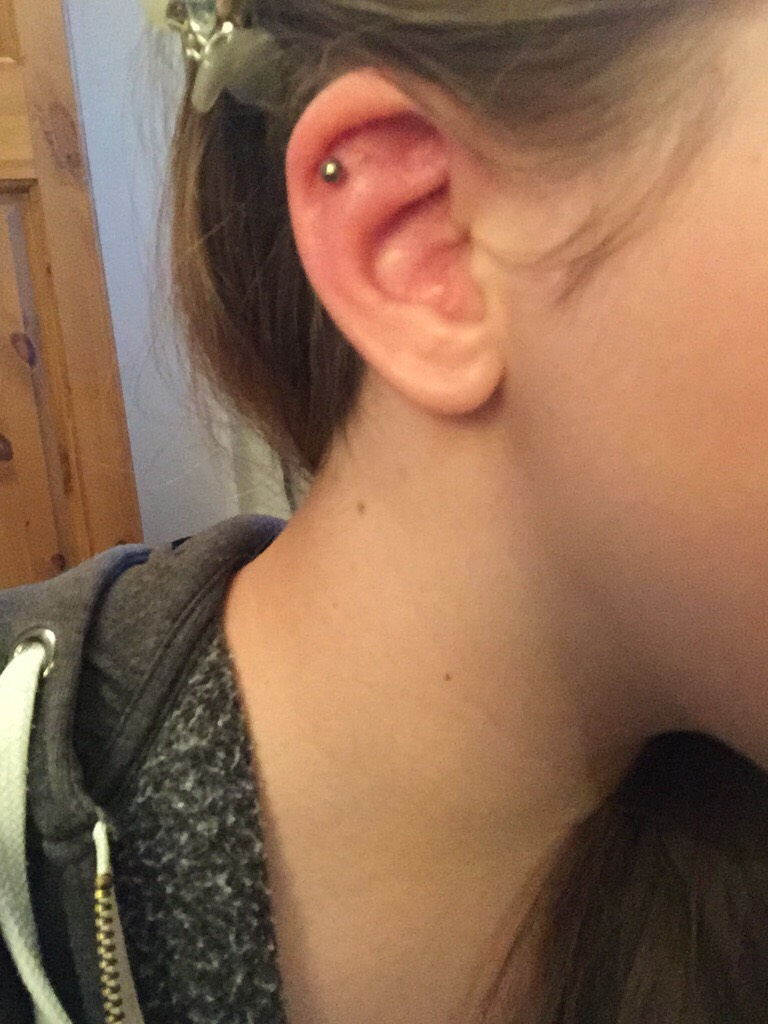 Infected Cartilage Piercing The Student Room