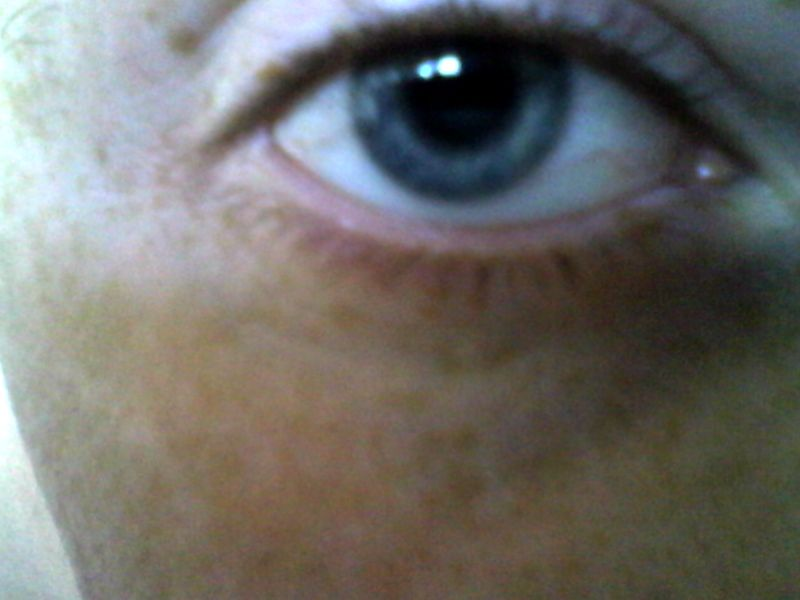 Name:  Freckle on eyelid.jpg