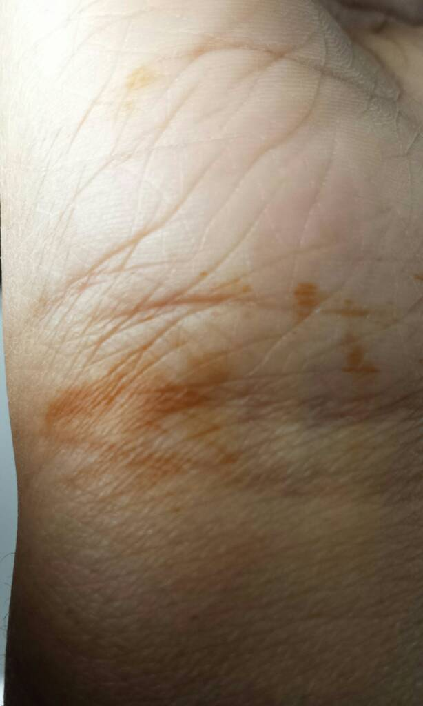Woke up to orange stained hand? - The Student Room