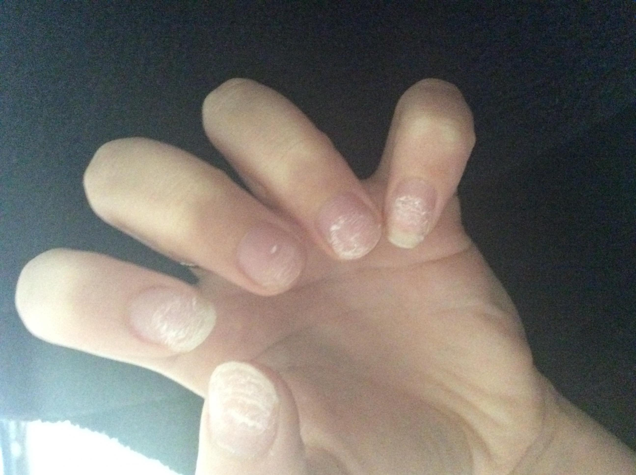 My nails are ruined after acrylics.. HELP!! - The Student Room