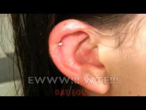 Swollen Cartilage Piercing The Student Room